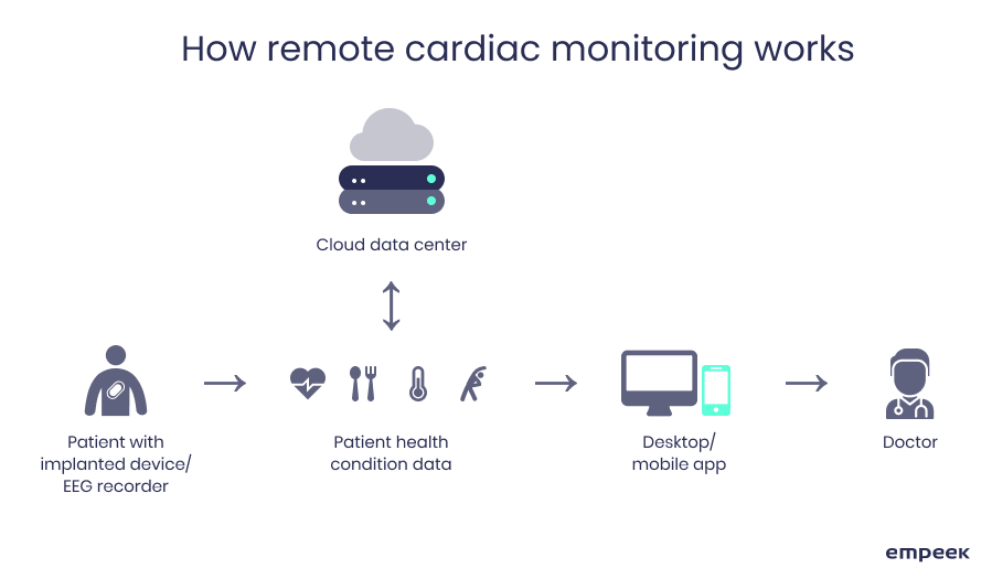 How remote cardiac monitoring works